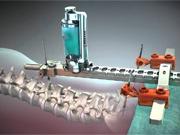 Bild: Mazor Robotics