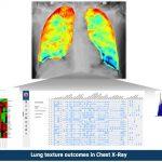 8Mio. Euro für AI Radiologie Plattform