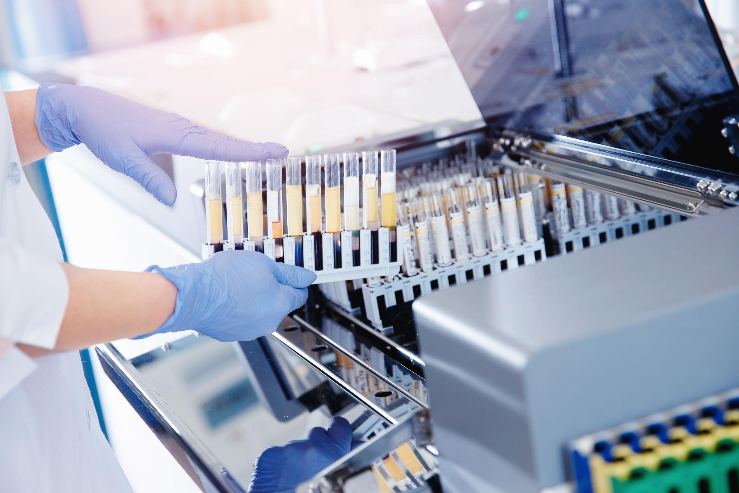 Linearantriebe für Diagnose- und Laborgeräte
