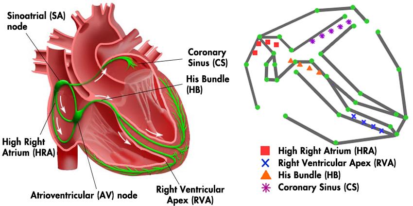 Herzschrittmacher: Heart on a chip - IoT Design